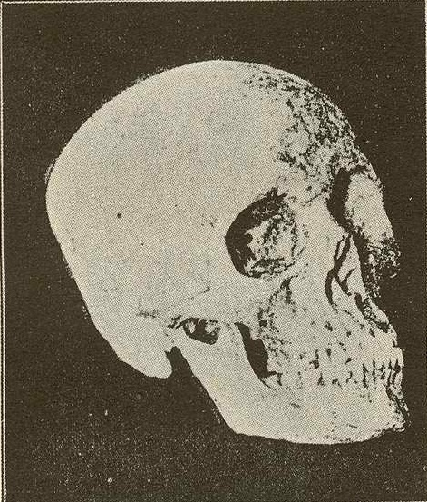 Rizal's cranium.  Photo courtesy of Dr. Ambeth R. Ocampo